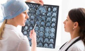 Эффективные средства от эпилепсии