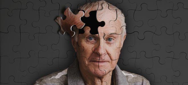 Причины возникновения болезни Альцгеймера