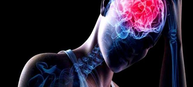 Легкая степень сотрясения головного мозга