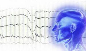 Энцефалограмма головного мозга у взрослого