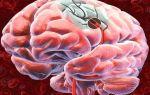 Симптомы, лечение и профилактика инсульта