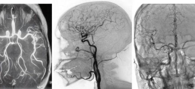 Дисциркуляторная энцефалопатия: стадии, диагноз, симптомы и лечение