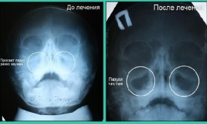 Рентгеновский снимок при гайморите