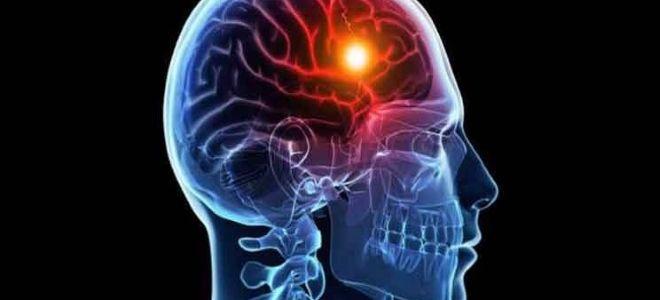 Главные отличия инфаркта от инсульта головного мозга
