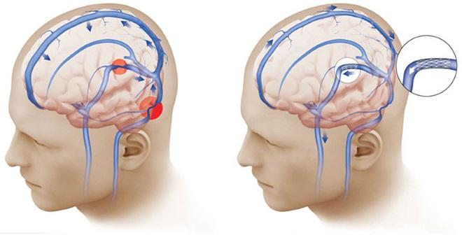 гипертензия внутричерепная