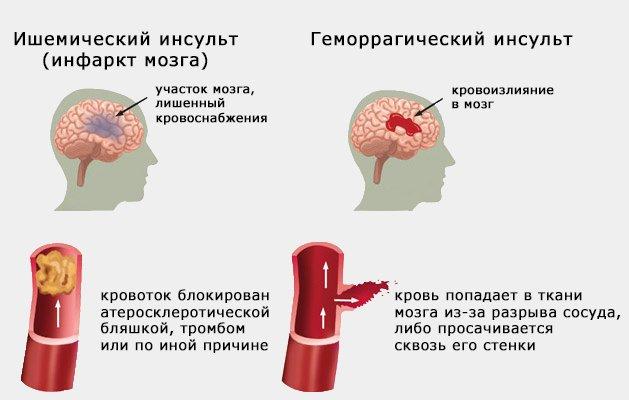 отличие инфаркта от инсульта