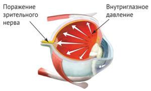 давление внутри глазного яблока