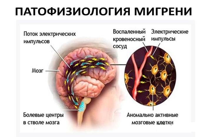 может ли при мигрени повышаться температура
