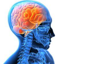 препараты от инсульта мозга