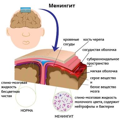 участки поражения менингитом