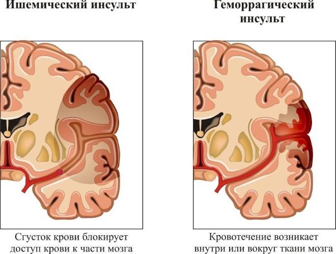 ишемический и гемморагический инсульт головного мозга