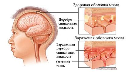 область поражения менигитом