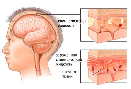 области риска менингита