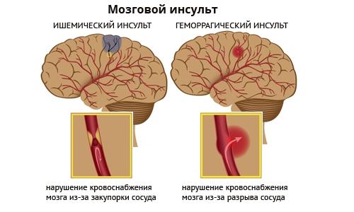 виды инсульта мозга