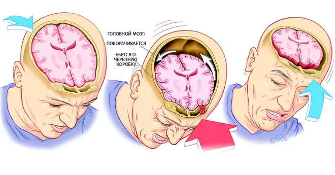 ушиб или сотрясение мозга
