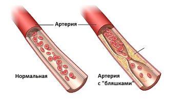 артерия при энцефалопатии мозга