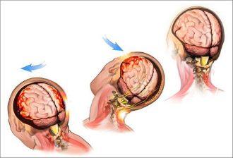 движение головы при сотрясении мозга