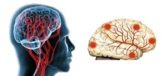 области поражения головного мозга при энцефалопатии головного мозга
