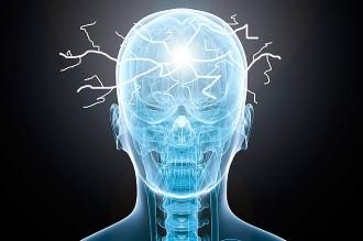 большое количество нервным импульсов в голове