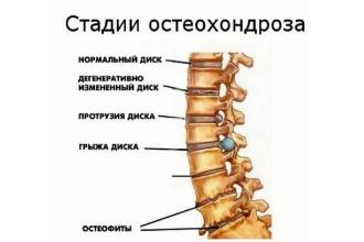 стадии остеохондроза шейного отдела