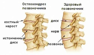 остеохондроз шейного типа и здоровый позвоночник