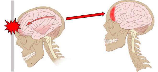 процесс сотрясения мозга