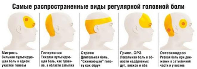 причина головной боли в зависимости от области локализации