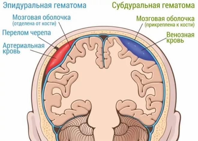 структура мозга при сотрясении